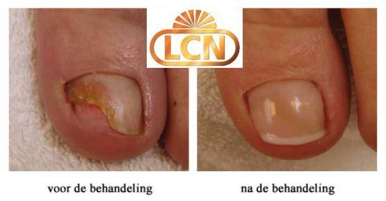LCN-pedicure-zwaag